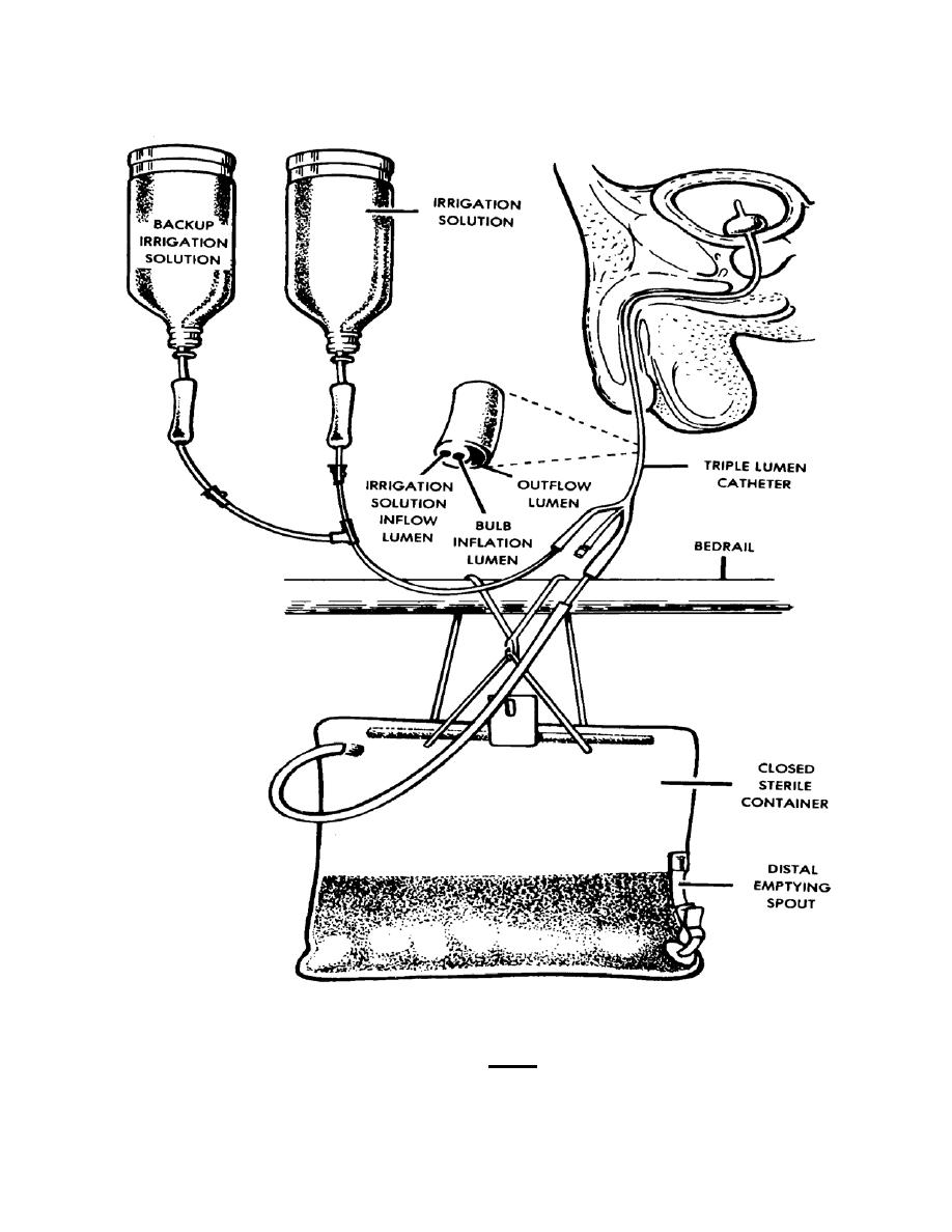 Figure 2-4. Continuous bladder irrigation. - Nursing Care