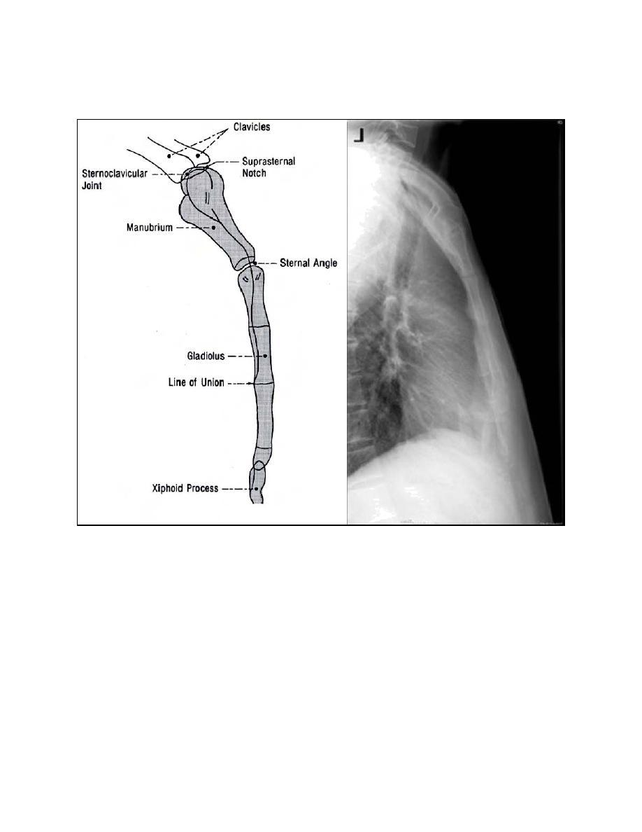 Sternum X Ray Anatomy Radiology Anatomy Images