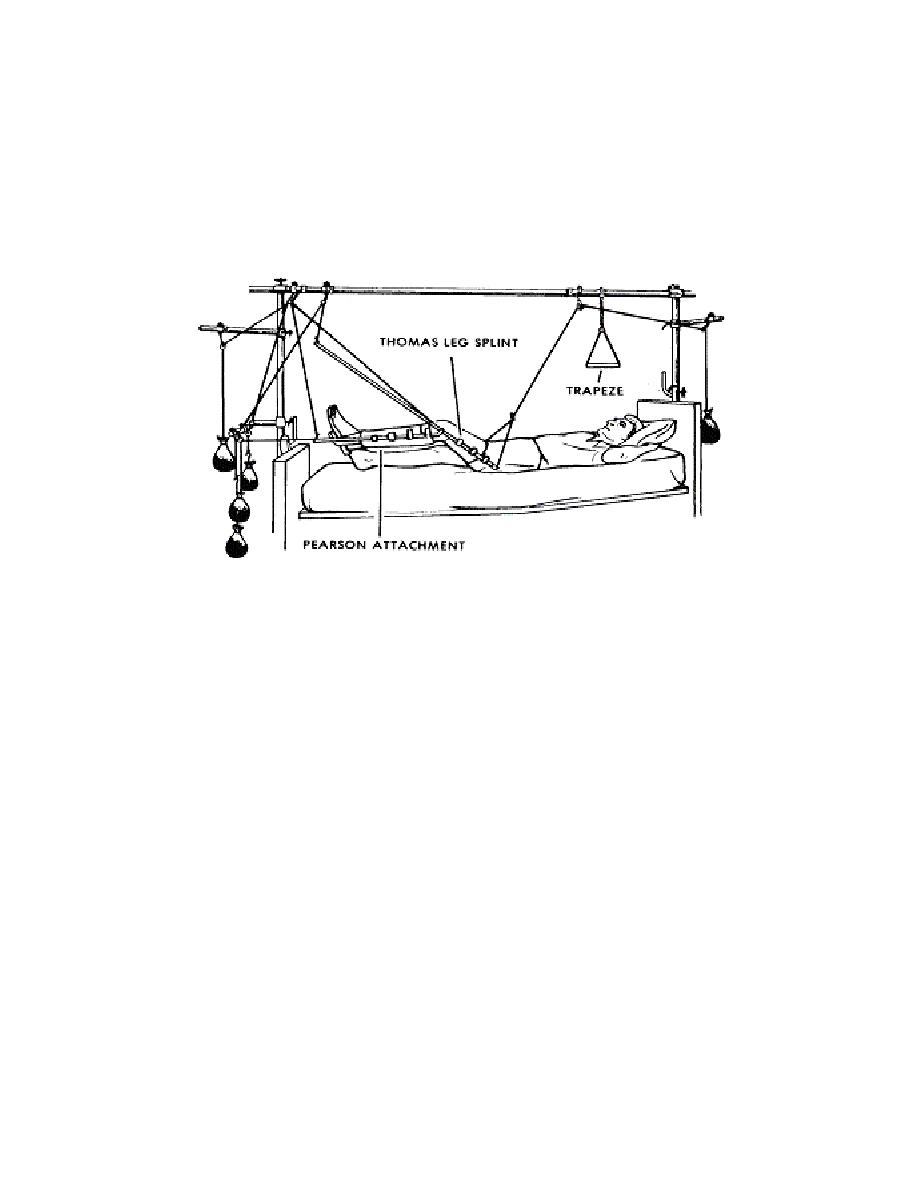 Femur Skeletal Traction http://armymedical.tpub.com/md0916/md09160040.htm